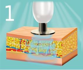 Алмазная микродермабразия — отшелушивание ороговевших клеток кожи