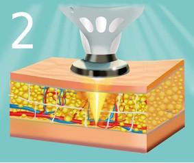 Лазеропорация — расщепление жиров с помощью коротковолнового лазера