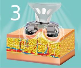 Эндомассаж — обработка вакуумно-роликовой насадкой