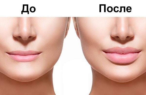 Контурная пластика в Днепропетровске До и после
