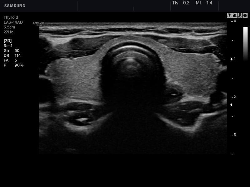 Показания к УЗИ щитовидной железы - PrimaDerm