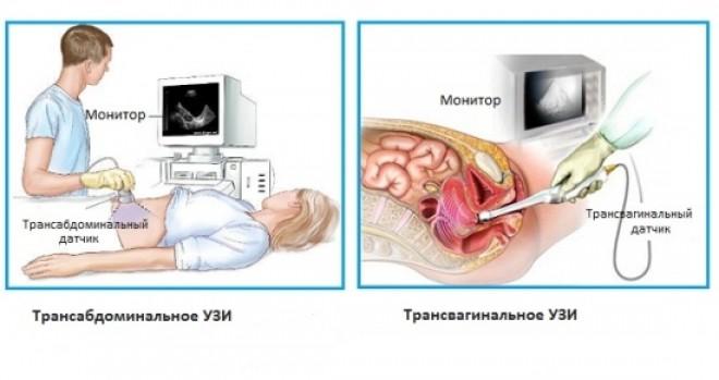 Методы ультразвуковой диагностики в Днепре