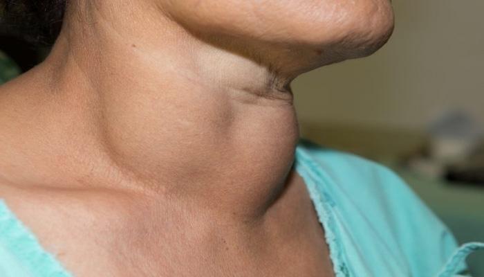 щитовидка воспаленная